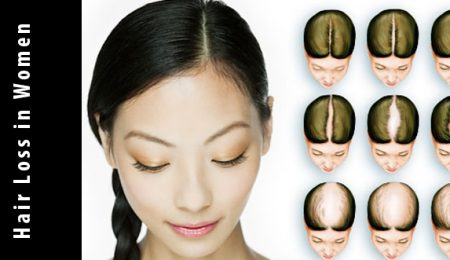 Causes of Female Hair Loss in Women