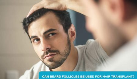 Can Beard Follicles Be Used For Hair Transplant?