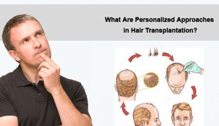 What Are Personalized Approaches in Hair Transplantation?