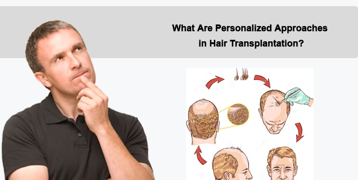 What Are Personalized Approaches in Hair Transplantation