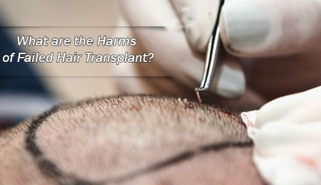 What are the Harms of Failed Hair Transplant?