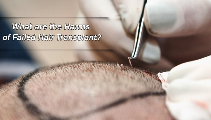 What are the Harms of Failed Hair Transplant