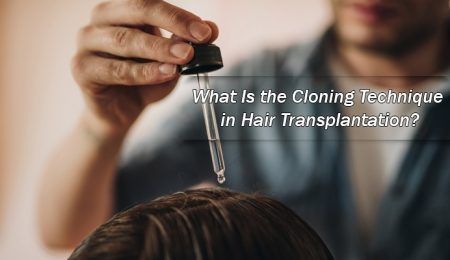 What Is the Cloning Technique in Hair Transplantation?