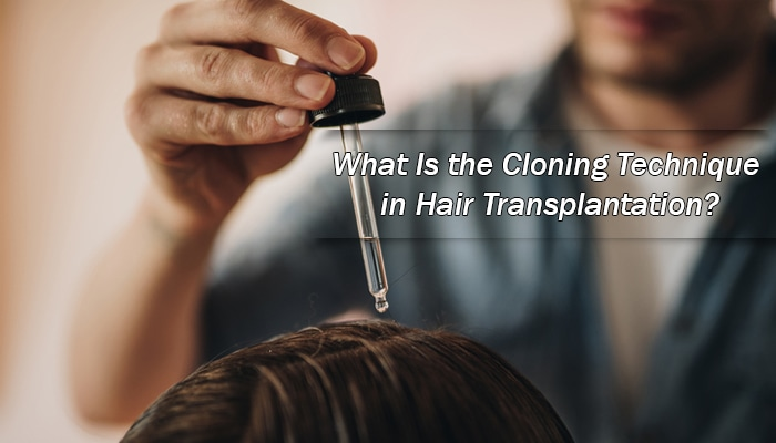 What Is the Cloning Technique in Hair Transplantation